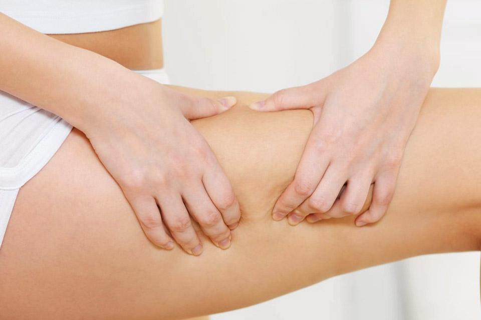 prevenir eliminer cellulite